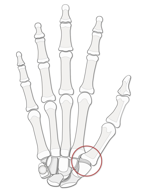 Form: the shape of the thumb carpometacarpal joint