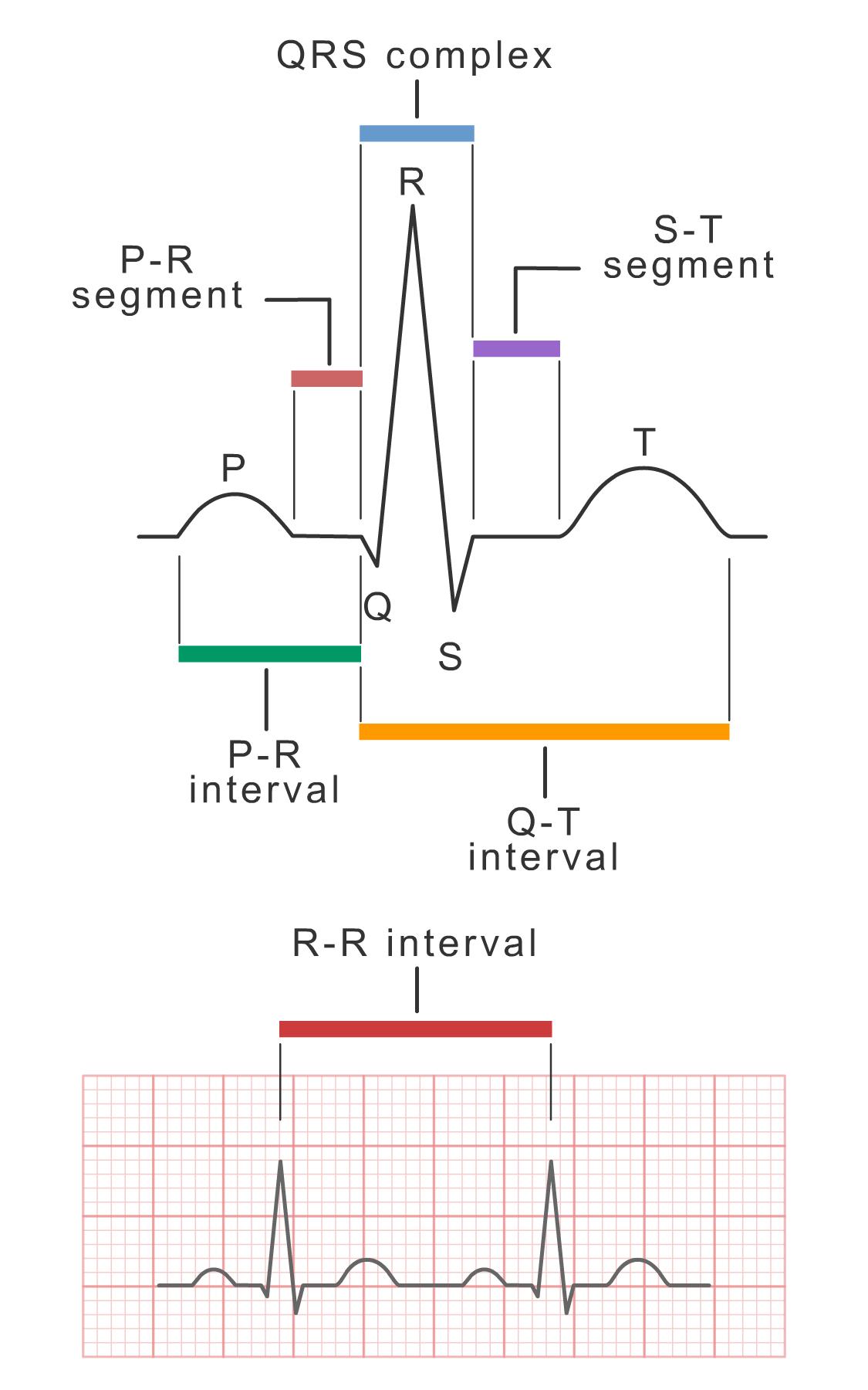 ECG waves, segments, and intervals